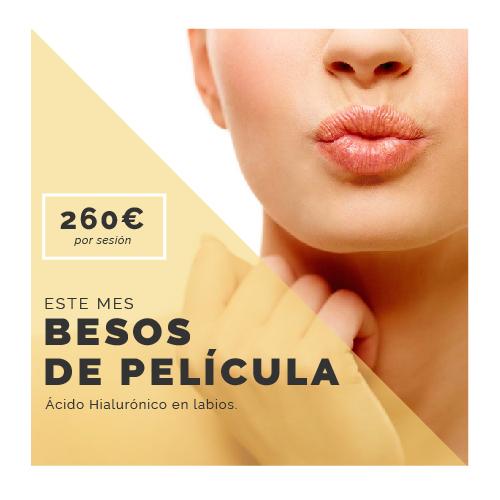 BESOS DE PELICULA