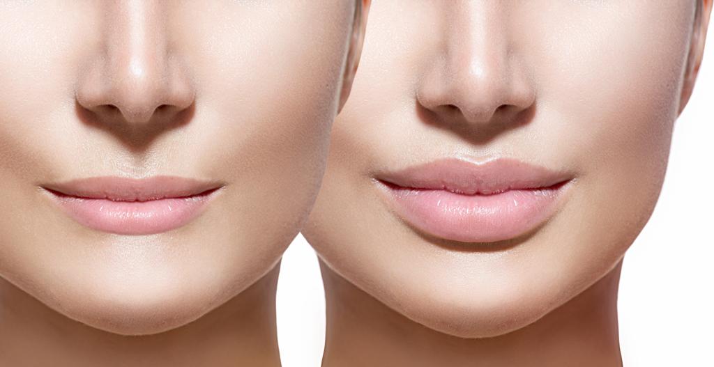 labios-hialuronico